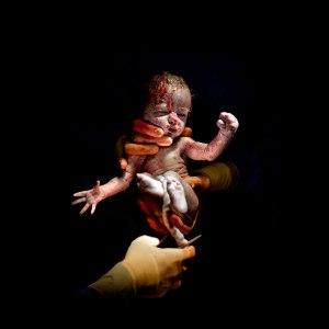 newborn-baby-christian-berthelot-c-section-cesar